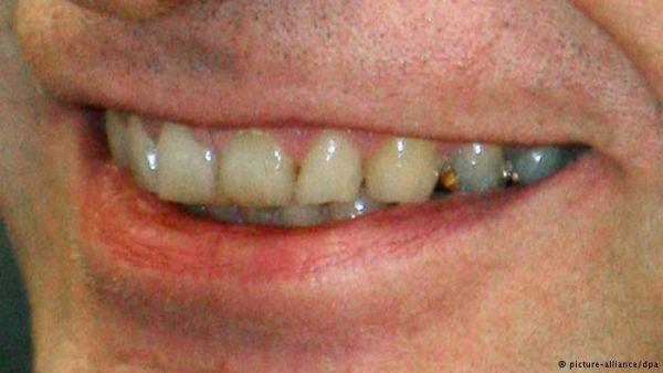 ستة أسباب غير مألوفة لاصفرار الأسنان - University Journal