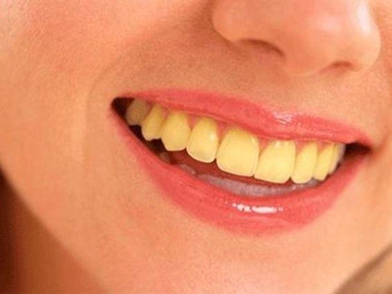 10 أسباب لاصفرار الأسنان - صحيفة الجامعة