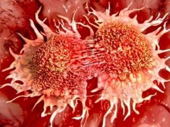 علماء يطورون وسيلة حديثة لقتل خلايا السرطان (فيديو) - صحيفة الجامعة