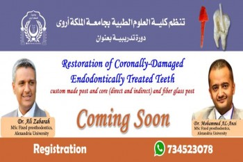 "دورة تدريبيه بعنوان ""Restoration of Coronally-Damaged Endodonically Treated Teeth"